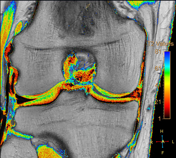 Questions and Answers in MRI - MRI Questions & Answers